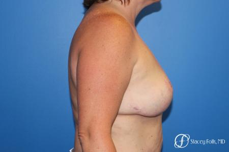 Breast Revision - Removal of Implant, Fat Transfer, Breast Lift (Mastopexy) -  After Image 3