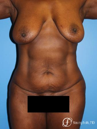 Denver Breast Lift - Mastopexy, and Tummy Tuck - Abdominoplasty 7512 - Before Image