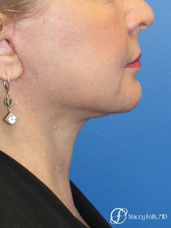 Denver Facial Rejuvenation 9894 -  After Image 1