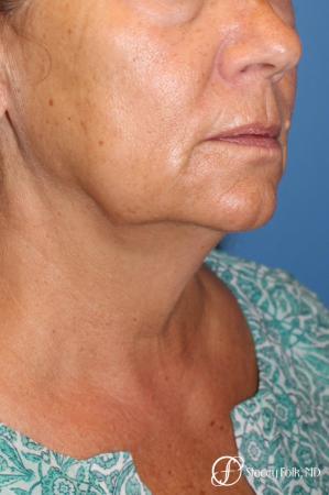 Denver Facial Rejuvenation Face Lift, Fat Injection, Laser Resurfacing 7123 - Before Image 2