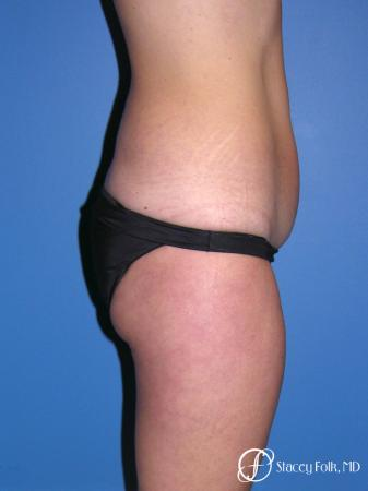Denver Tummy Tuck Abdominoplasty and liposuction 4880 - Before and After Image 3