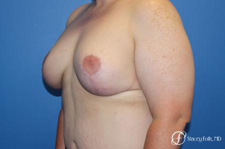 Breast Lift (Mastopexy) -  After Image 2
