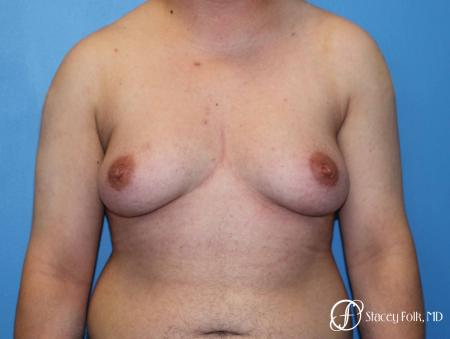 Denver FTM Top Surgery 5089 - Before Image