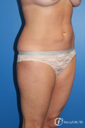Denver Liposuction 10267 - Before and After Image 3