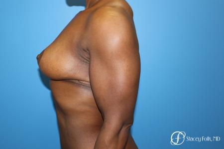 Denver Breast Lift - Mastopexy 7509 -  After Image 5
