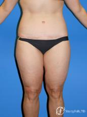 Denver Body Lift Belt lipectomy & liposuction 5264 - After Image