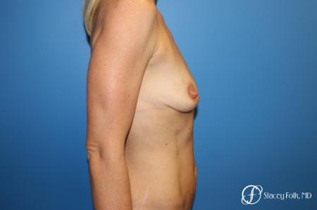 Breast augmentation with breast lift (Mastopexy) - Before and After Image 3