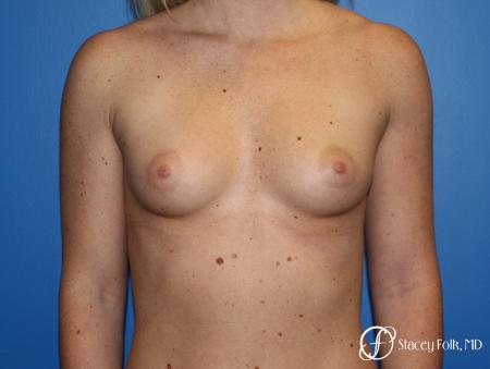 Breast Augmentation with Sientra Textured Implants - Before Image 1