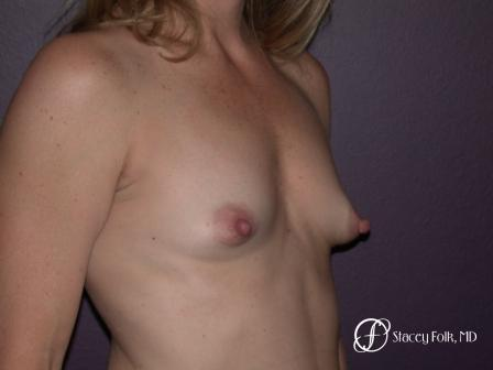 Denver Breast Augmentation 959 - Before Image 2