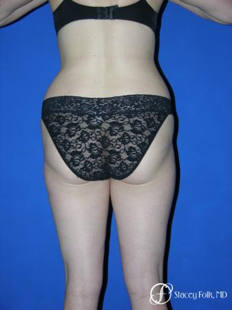 Denver Liposuction 961 - Before and After Image 2