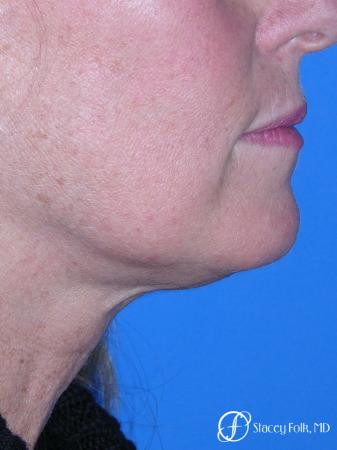 Denver Facial Rejuvenation 7916 - Before and After Image 2