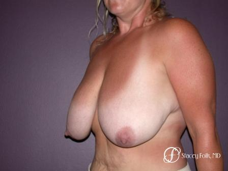 Denver Breast Reduction 45 - Before Image 2