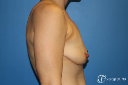 Denver Breast Lift (Mastopexy) with agumentation 9093 - Before and After Image 3