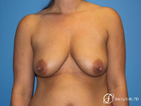 Denver Breast Lift and Augmentation 8629 - Before Image