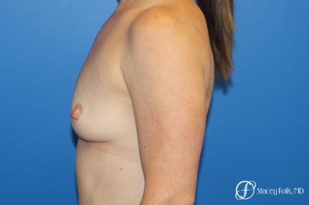 Breast augmentation with Natrelle Inspira breast implants - Before and After Image 5