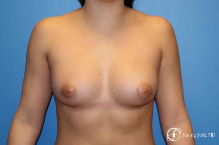 Fat Transfer Breast Augmentation - After Image