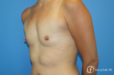 Denver Breast augmentation using textured anatomical implants 5849 - Before Image 2