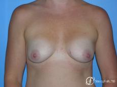 Denver Breast Augmentation with Fat Transfer to the Breast 6917 - Before Image