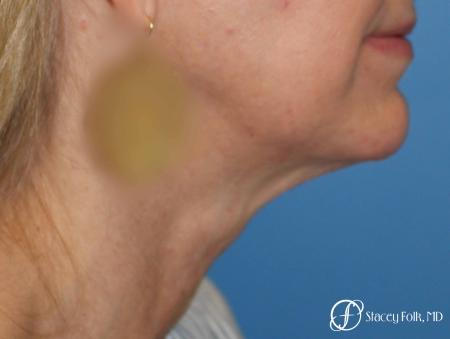 Denver Facial Rejuvenation Face Lift and Fat Injections 7126 - Before Image 1
