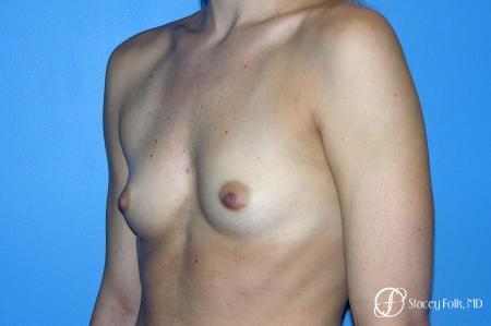 Denver Breast Augmentation 8202 - Before Image 2