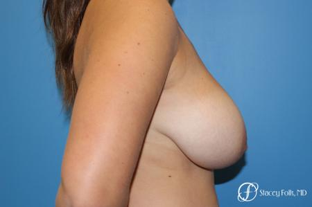 Denver Breast Lift - Mastopexy 10021 - Before and After Image 5