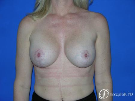Denver Breast Lift and Augmentation 4555 - After Image