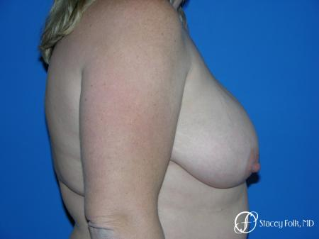 Denver Breast Reduction 4790 - Before Image 3
