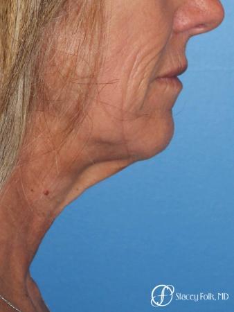 Denver Facial Rejuvenation Face lift, Fat Injections, and Laser Resurfacing 7132 - Before Image 1