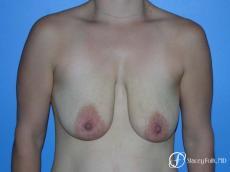 Denver Breast Lift - Mastopexy 7981 - Before Image