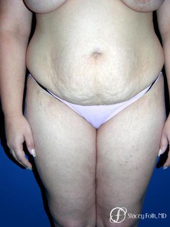 Denver Tummy Tuck 23 - Before Image 1