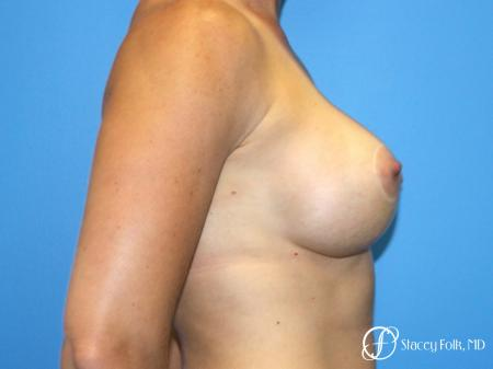 Denver Breast Augmentation with a Breast Lift - Mastopexy 8361 -  After Image 3