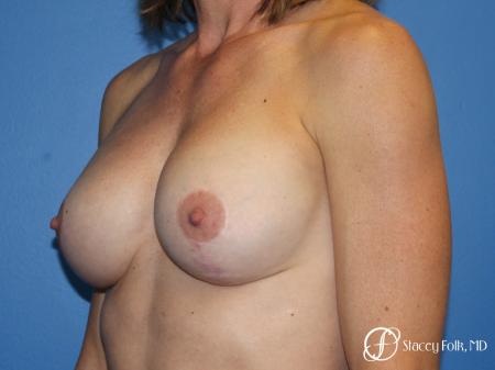 Denver Breast augmentation and breast lift (Mastopexy) 10091 -  After Image 3