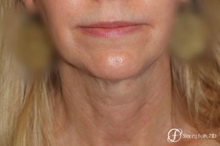 Denver Facial Rejuvenation Face Lift and Fat Injections 7126 - Before and After Image 3