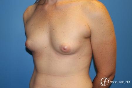 Denver Male to female top surgery with Sientra anatomic textured classic implants 5256 - Before Image 2