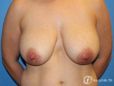 Denver Breast Lift - Mastopexy 7988 - Before Image
