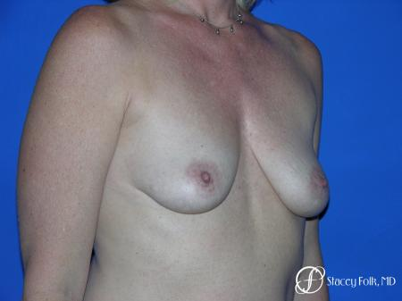 Denver Breast Lift and Augmentation 4555 - Before and After Image 2