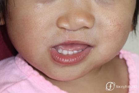 Denver Cleft Lip and Palate Repair 10315 - After Image