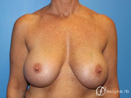 Denver Breast Revision 8543 - Before Image