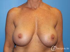 Denver Breast Revision 8543 - Before Image