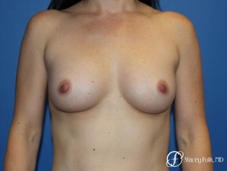 Breast augmentation with Natrelle Inspira breast implants - After Image
