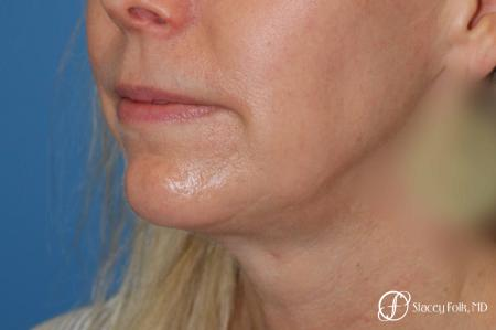 Denver Facial Rejuvenation Face Lift and Fat Injections 7126 - Before Image 2