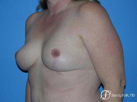 Denver Breast Reduction 4790 -  After Image 4