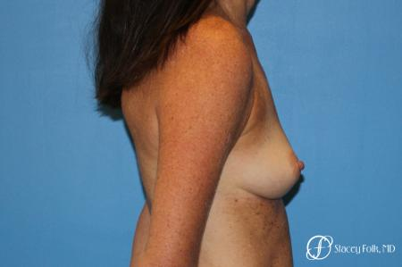 Denver Breast Augmentation using Sientra Silicone Gel Breast Implants 9362 - Before and After Image 3