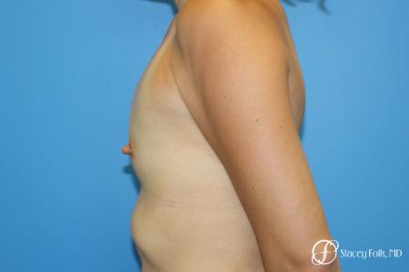 Denver Breast augmentation using textured anatomical implants 5849 - Before and After Image 3