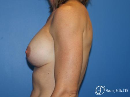 Denver Breast augmentation and breast lift (Mastopexy) 10091 -  After Image 4