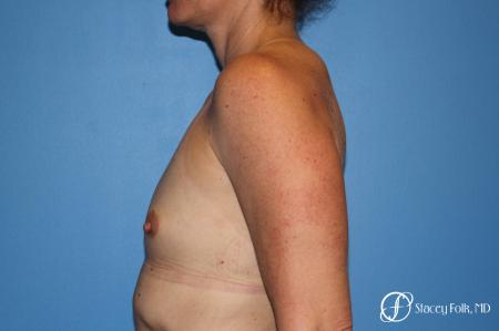 Denver Breast Augmentation 6611 - Before and After Image 3