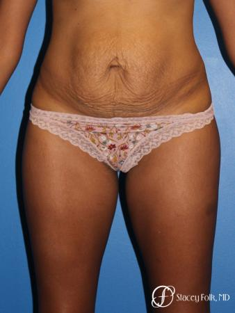 Tummy Tuck (Abdominoplasty) - Before Image 1