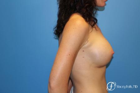 Denver Breast Augmentation using Sientra Breast Implants 7135 -  After Image 3