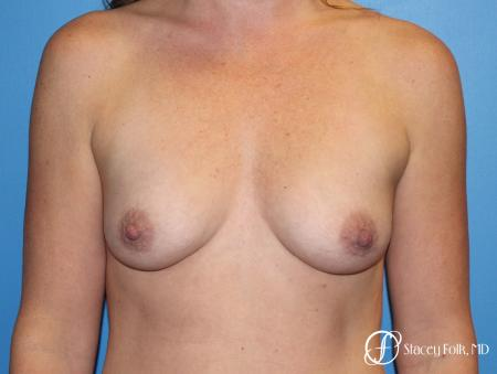 Denver Breast augmentation using Sientra textured anatomic implants 5578 - Before Image 1