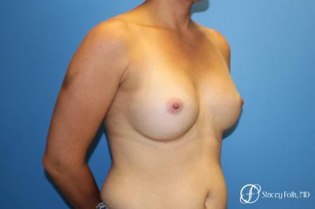 Denver Breast augmentation 7111 -  After Image 2